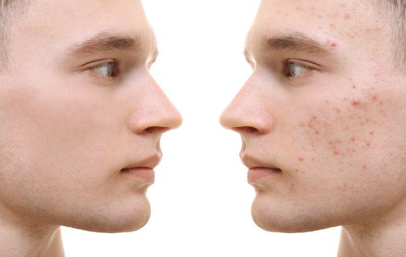 Erkeklerde kadınlar kadar cildine önem vermelidir