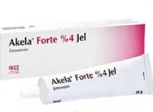 Akela %4 Forte Jel Niçin Kullanılır, Yorumlar?